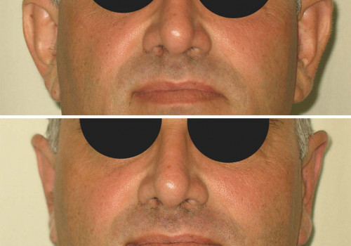 Before and after (Dr Karel Taams)