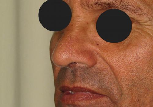 After (Dr Karel Taams)
